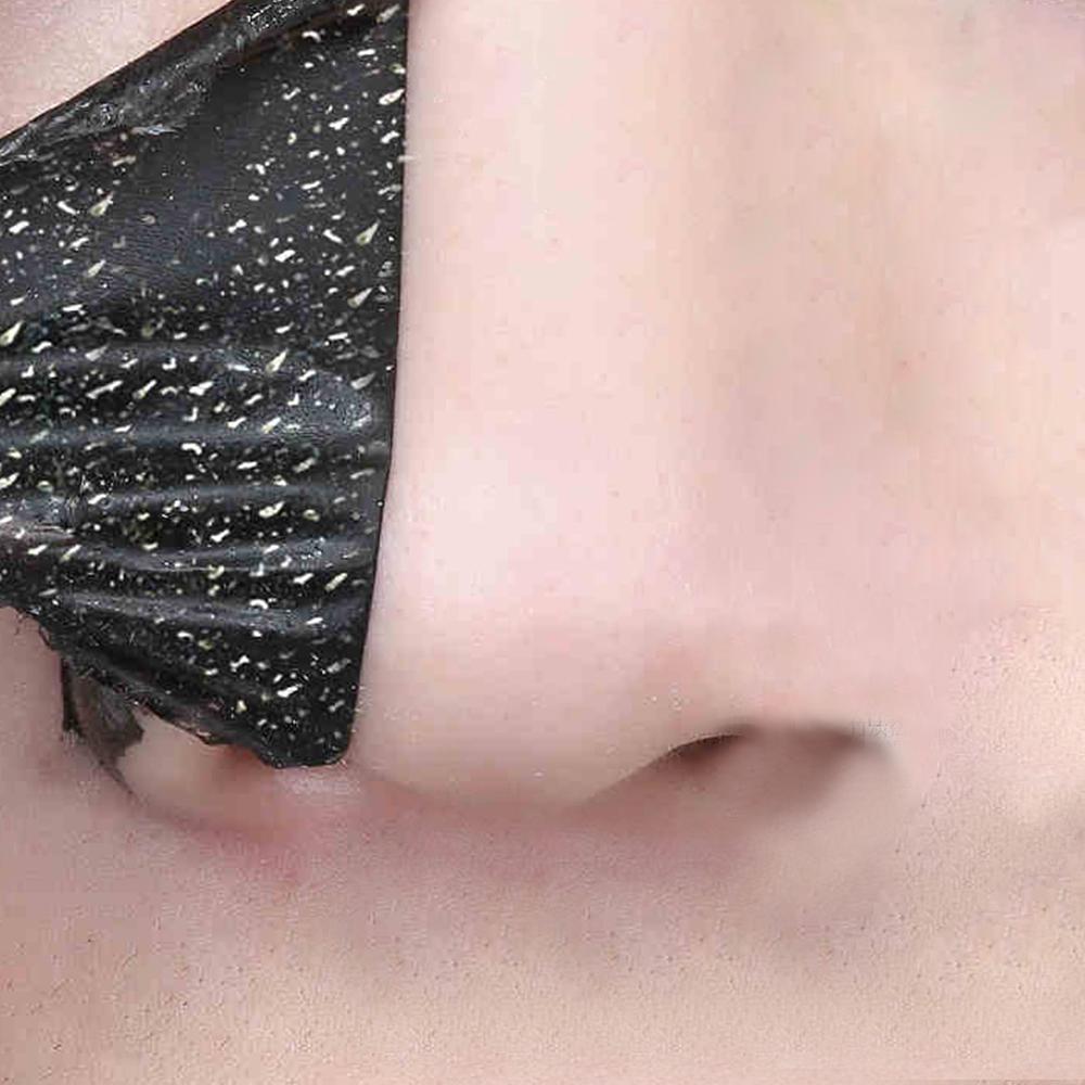 Nose Blackhead Removal Sticker Strips